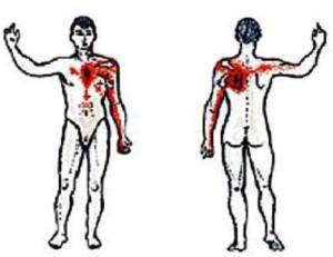 Типичная локализация боли при стенокардии
