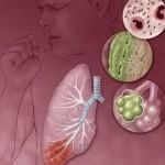 Как и почему возникает воспаление легких