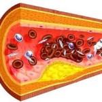 Атеросклероз — запрограммированное старение
