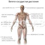 Вегето-сосудистая дистония — симптомы, типы, провоцирующие факторы развития