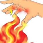 Помощь при ожогах высокими температурами