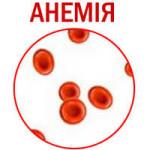 Железодефицитная анемия в повседневной жизни