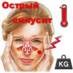 Острый синусит диагностика и лечение