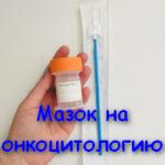 Мазок на онкоцитологию: обычная и жидкостная